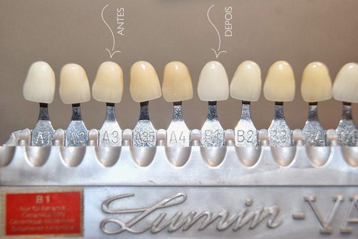 Escala de Cores: Clareamento Dental Caseiro