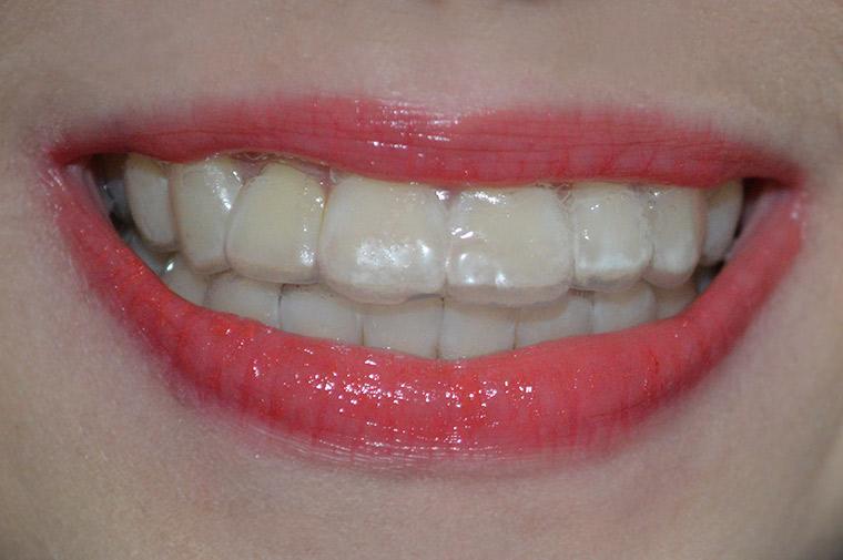 Usando as moldeiras de clareamento dental caseiro