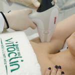 Novidade em depilação a laser chega à Vitaclin em Curitiba