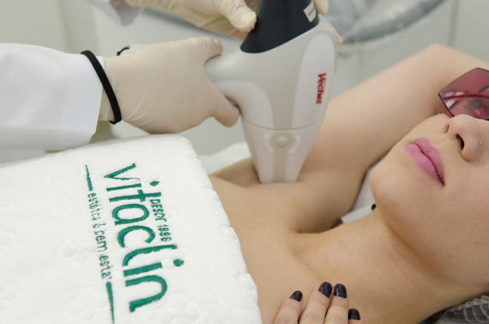 Vitaclin lança laser de depilação mais seguro do mundo em Curitiba