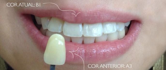 Clareamento Dental Caseiro A3 - B1