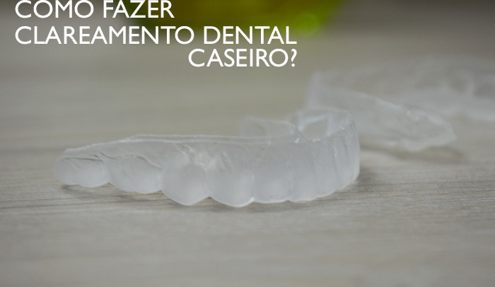 Clareamento Dental caseiro com dentista
