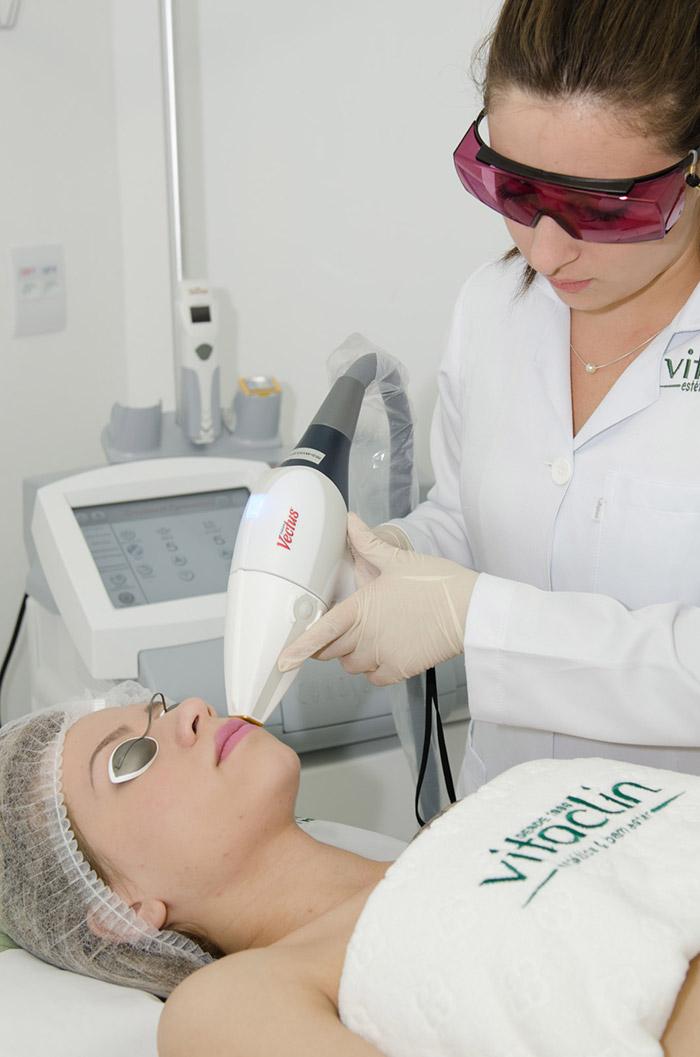 Depilação a laser em Curitiba - Vectus Vitaclin