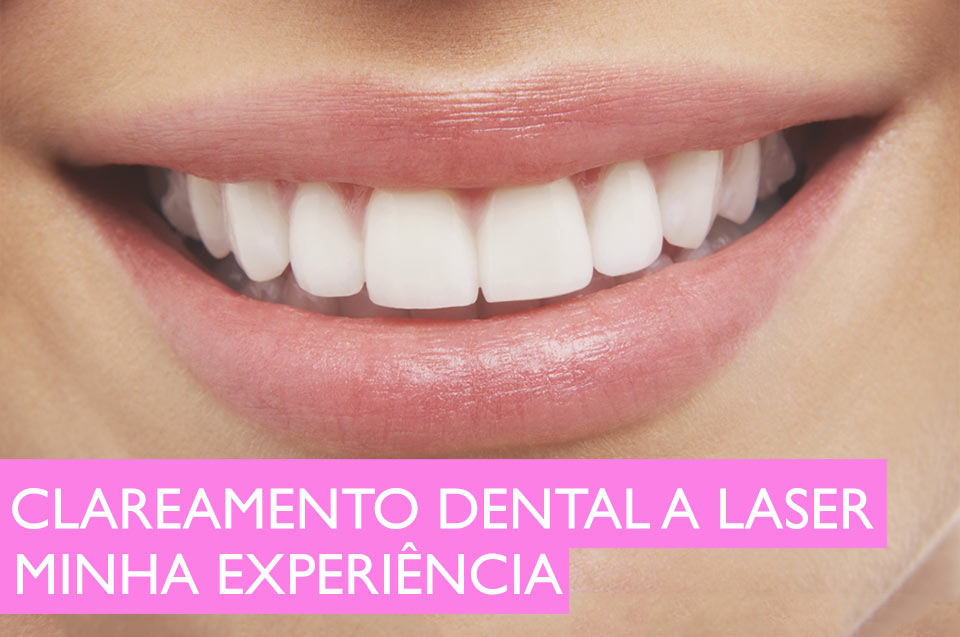 Clareamento Dental A Laser Como E Feito E Resultados Manu Luize