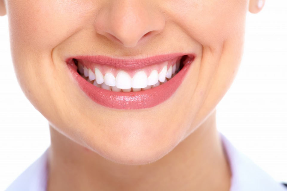 Dentes perfeitos Curitiba