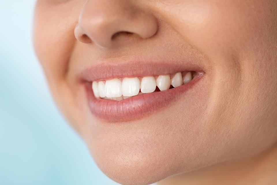 Facetas de porcelana X lentes de contato dental