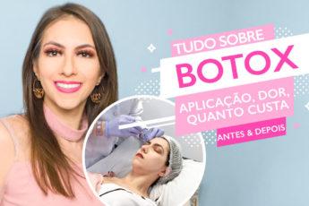 Botox no rosto: antes e depois